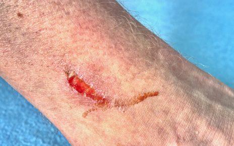 Drukowanie skóry w 3D pomoże w leczeniu ran głębokich i przewlekłych