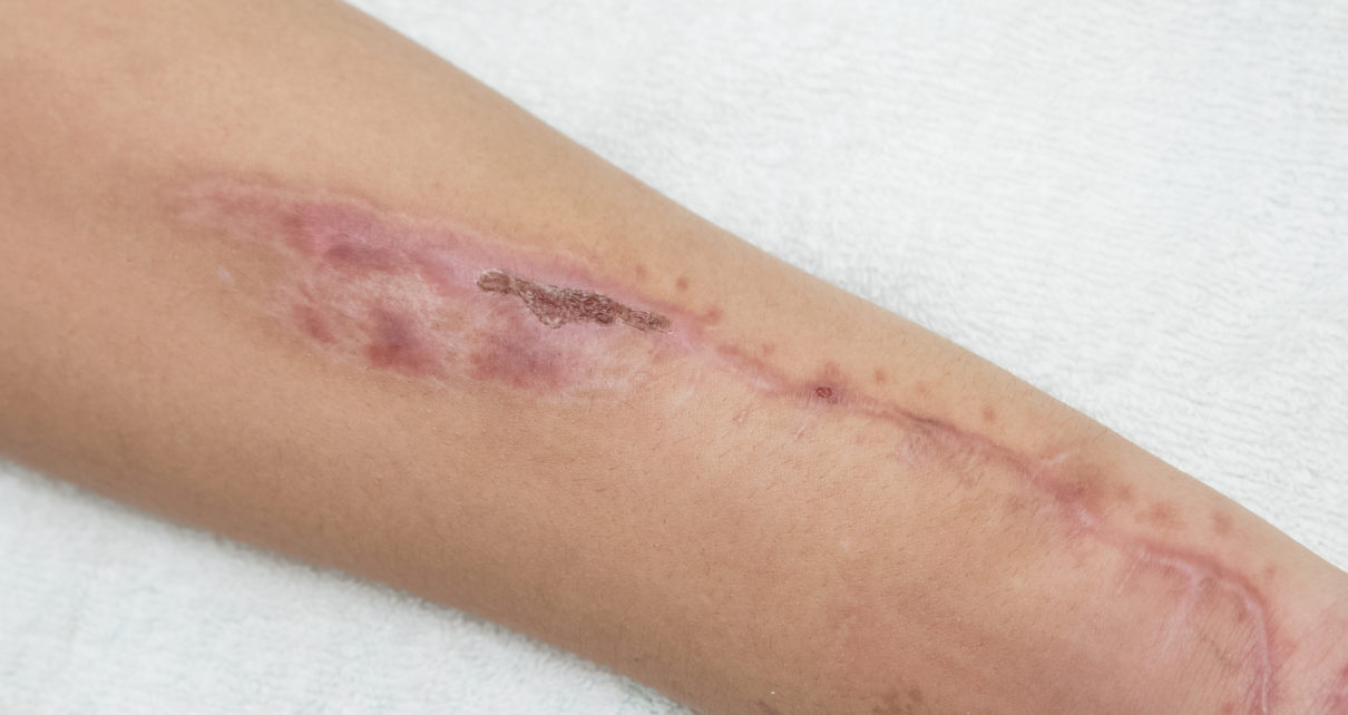 Naukowcy odkryli przyczynę mniejszego bliznowacenia ran u osób starszych