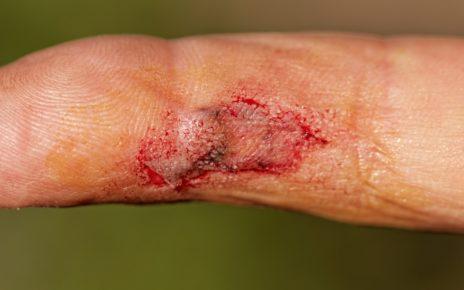 Postępowanie miejscowe w ranach zakażonych