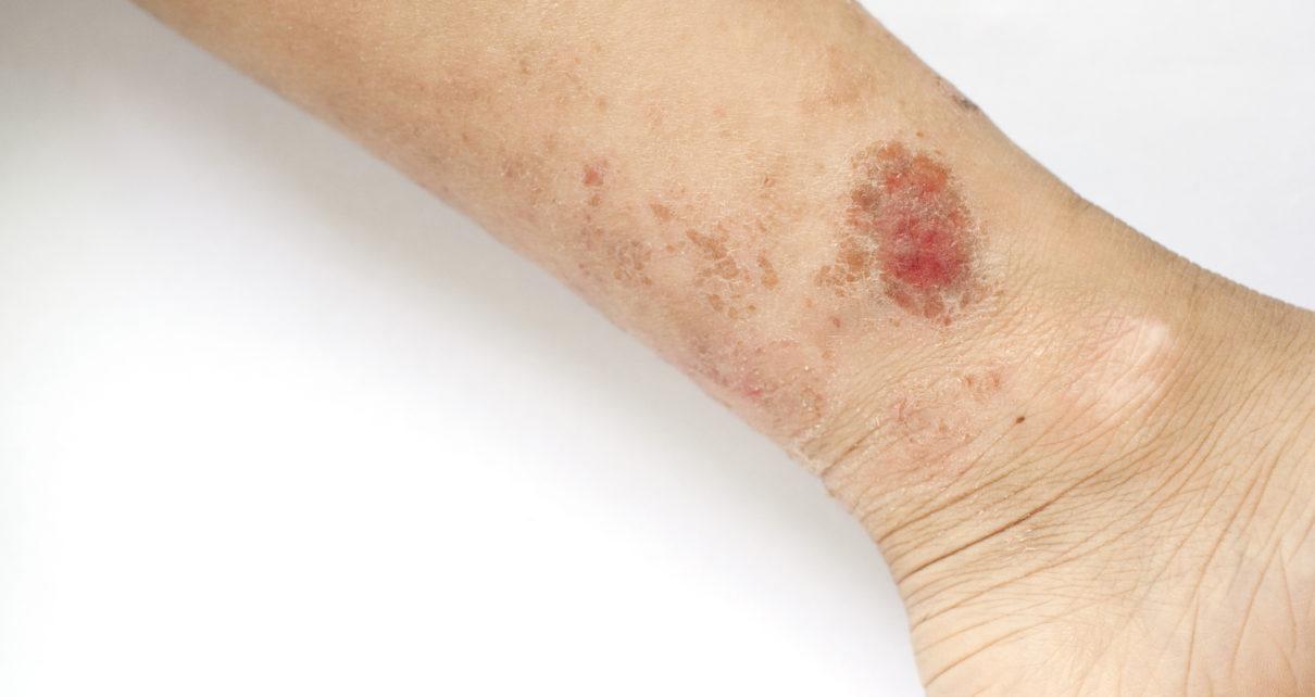 Badanie: krem wspomagający gojenie ran przy recesywnej postaci EB
