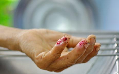 Wpływ bioaktywnego szkła na gojenie się ran