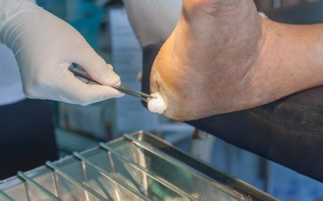 Leki obniżające ciśnienie mogą podwoić ryzyko amputacji nóg u cukrzyków!