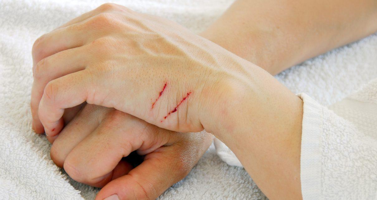 Naukowcy zidentyfikowali kolejny mechanizm komórkowy zamykający rany