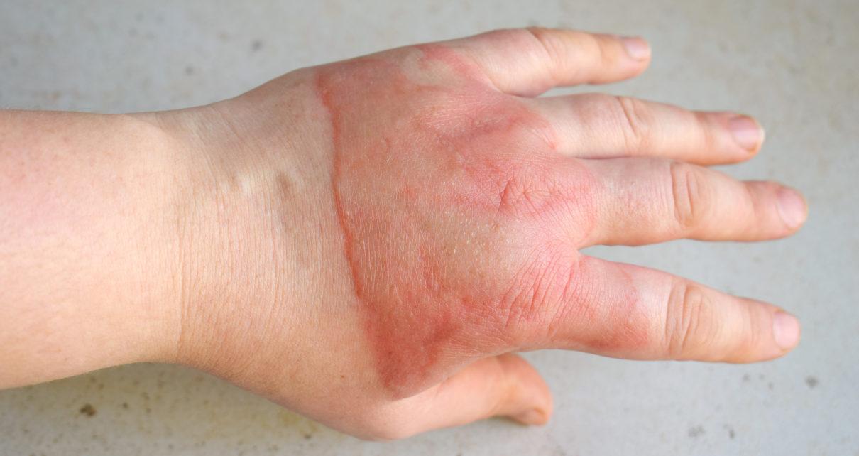 Pielęgnacja ran i blizn pooparzeniowych – o czym należy pamiętać?