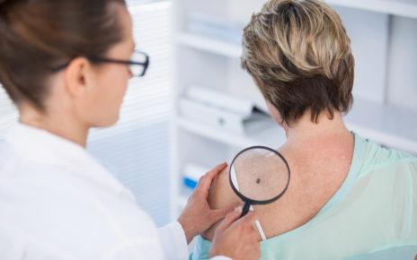Nawet niewielka rana lub zmiana skórna może być objawem raka skóry