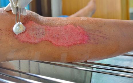 Badanie: rakotwórczy pasożyt wątroby może wspomóc leczenie ran przewlekłych