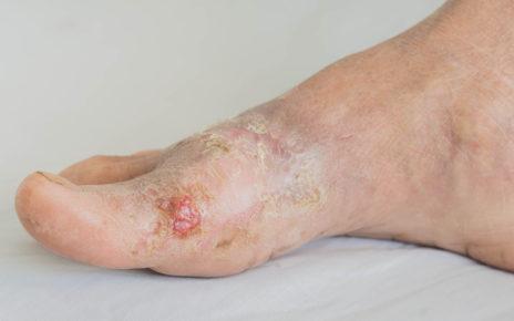 Czynniki hamujące proces gojenia rany