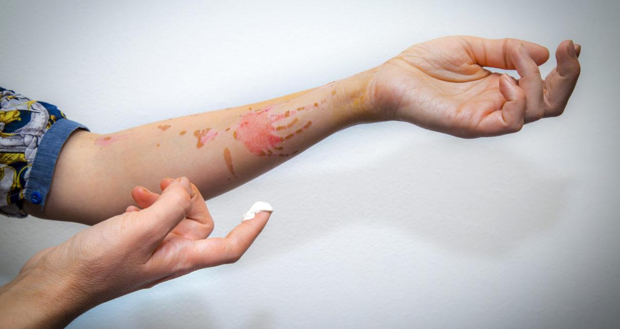 Żel z kory brzozy przyspiesza gojenie oparzeń i zmniejsza bliznowacenie skóry