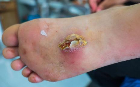 Zespół stopy cukrzycowej – jak powstaje?