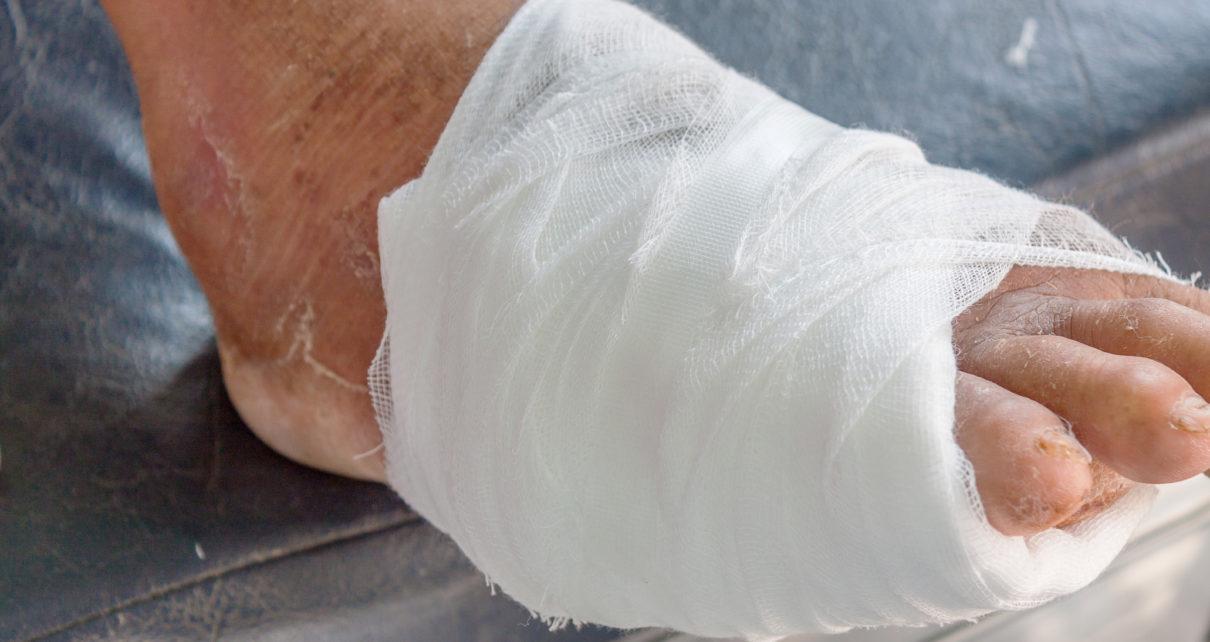 Powikłania w zespole stopy cukrzycowej – jak uniknąć amputacji? Case study
