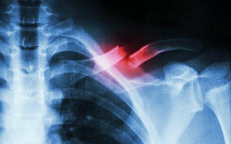 Polski wynalazek może być przełomem w leczeniu uszkodzeń kości