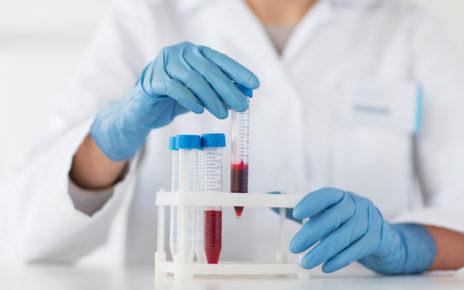 Badanie: białko osocza może być korzystne dla procesu gojenia