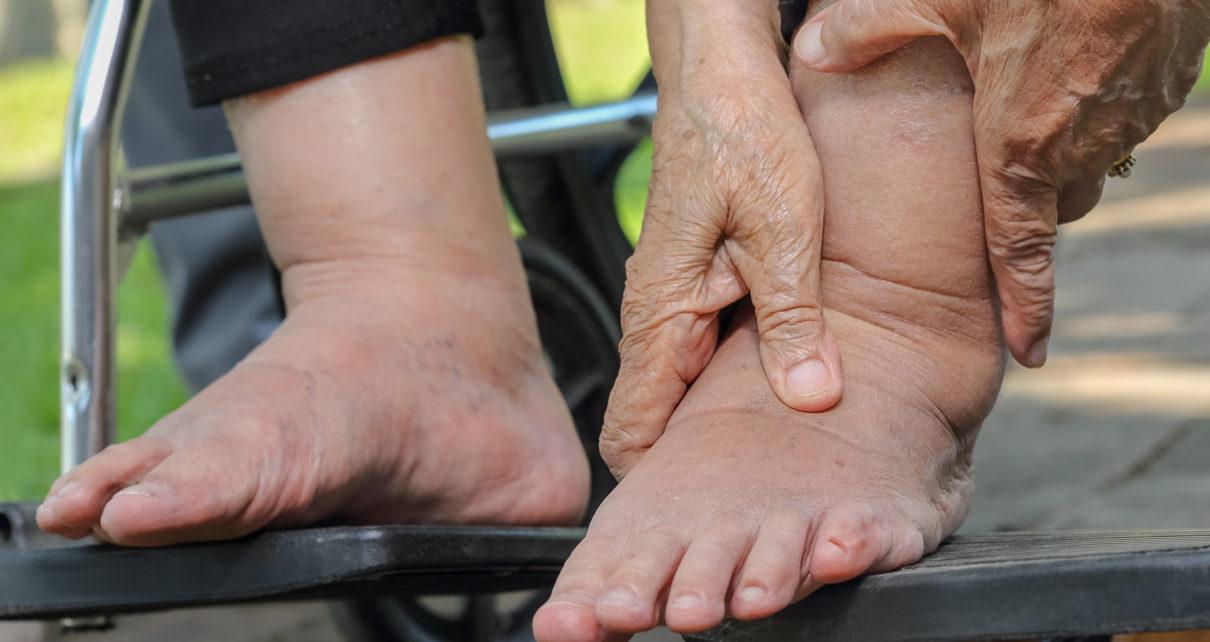 Ok. 6 tys. osób w Polsce z Osteoartropatią Charcota