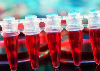 Nowe badania wojskowe mogą pomóc w leczeniu raka i trudnych urazów