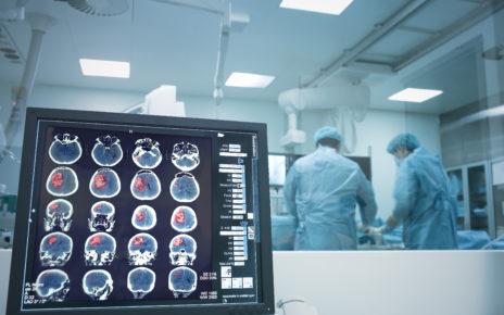 Drukowana w 3D hiperelastyczna kość przełomem w rekonstrukcjach czaszki