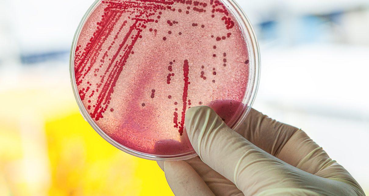 Badanie zawęźlonych białek krokiem do antybiotykooporności