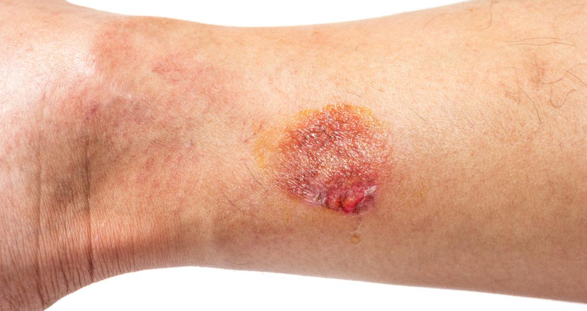Nowa terapia komórkowa dystroficznej postaci EB doprowadzi do trwałego zagojenia ran?