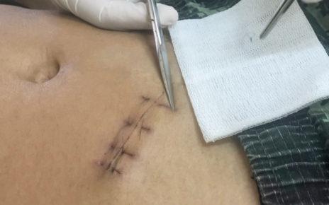Nowatorska operacja: ofiary oparzeń wyleczono błoną owodniową