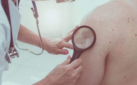 Eksperci: stosowanie kosmetyków z filtrami UV podstawą profilaktyki czerniaka i raka skóry
