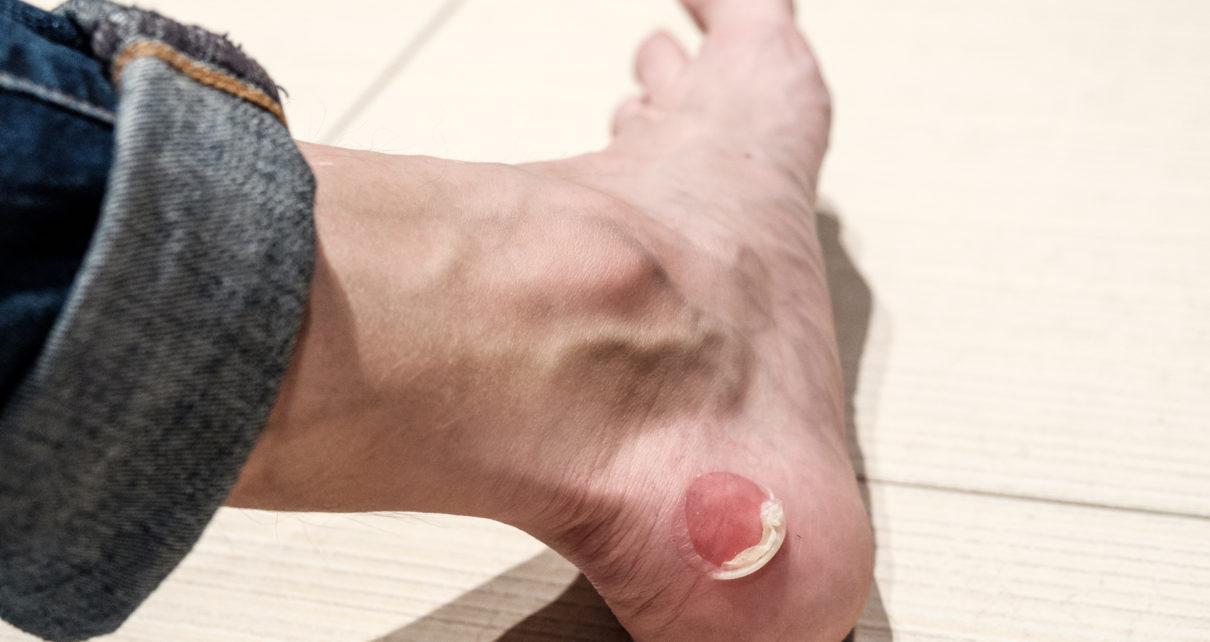 Odparzenia skóry - jak sobie z nimi radzić?