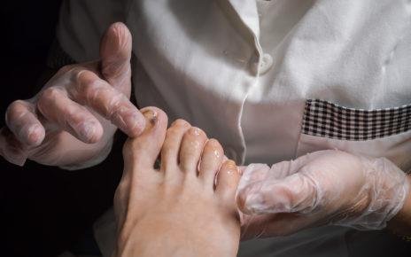 Jak poznać, że to czerniak paznokcia, a nie krwiak podpaznokciowy?