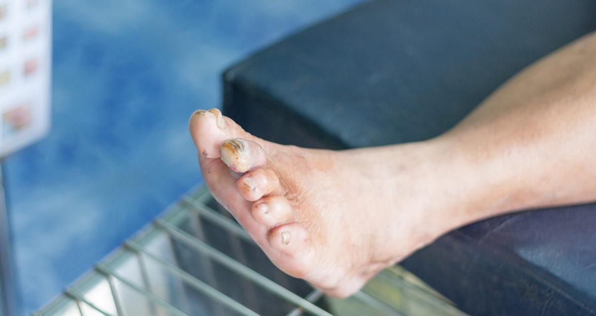 Miejscowa terapia tlenowa pomaga w leczeniu owrzodzeń stopy cukrzycowej