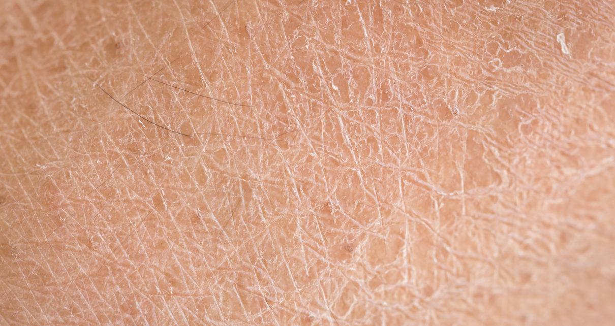 Pierwsze zastosowanie zmodyfikowanej genetycznie skóry świni na ludzką ranę