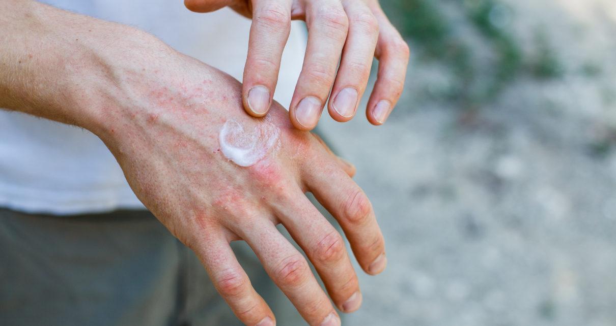Choroby bakteryjne skóry