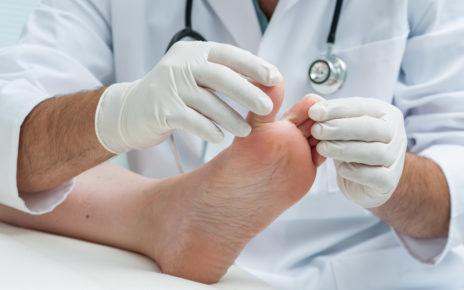 Rola okresowych i przesiewowych badań stóp w profilaktyce zespołu stopy cukrzycowej