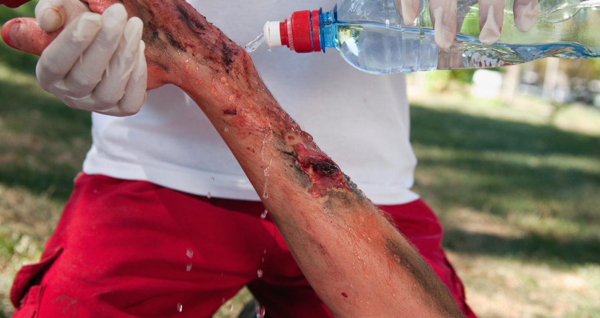 Ocena ciężkości oparzeń