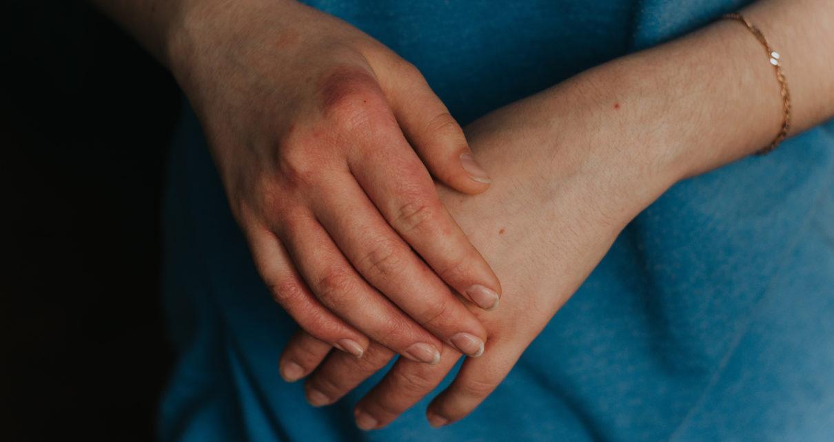 Zmiany skórne u osób chorych na świerzb