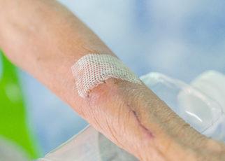 Polscy naukowcy opracowali rozpuszczalny opatrunek, który dodatkowo uwolni leki do rany