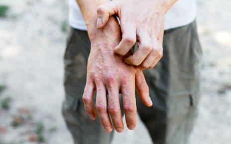 Pacjenci z atopowym zapaleniem skóry szczególnie narażeni na zakażenie koronawirusem