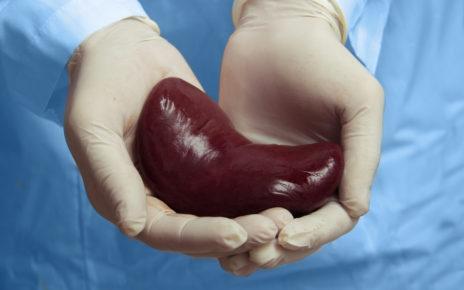 Cytomegalia jako powikłanie po przeszczepieniu nerki
