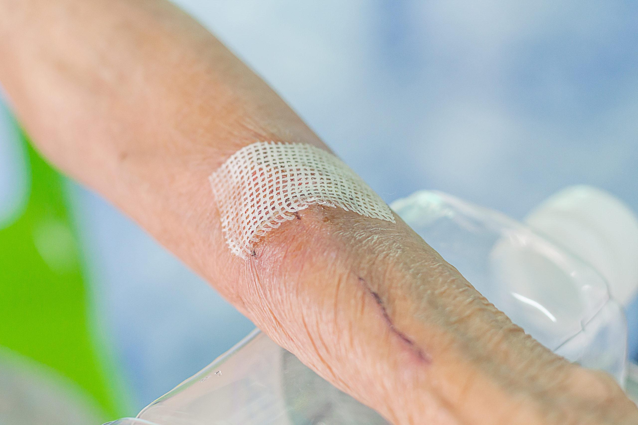 Badania pokazały, że tkanka tłuszczowa śródskórna u seniorów pozytywnie wpływa na proces gojenia ran