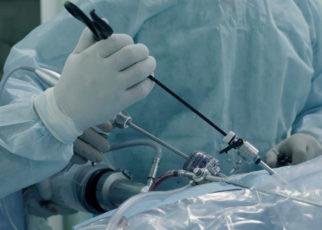 Laparoscopic surgery of the abdomen. The team of medical specialists conducting laparoscopic surgery