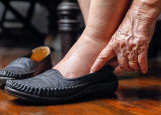 Rodzaje ran przewlekłych u osób starszych