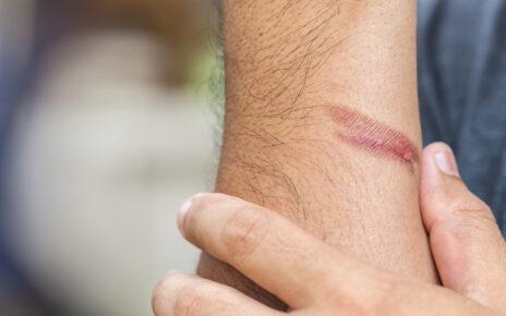 Amerykańscy naukowcy odkryli czynnik genetyczny, dzięki któremu skóra dorosłego człowieka jest w stanie zregenerować się, tak jak skóra noworodka