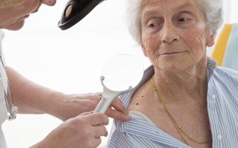 """Kampania edukacyjna """"Rak UV"""": Kto jest najbardziej narażony na wystąpienie raka kolczystokomórkowego?"""