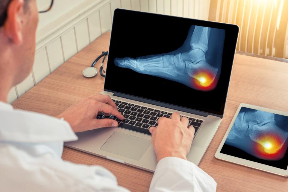 Pedobarografia w leczeniu stopy cukrzycowej