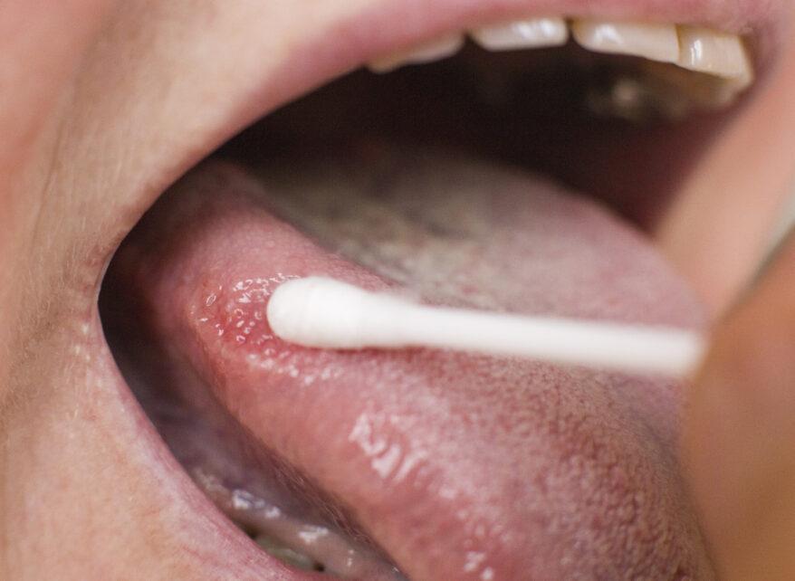 Rak języka najczęstszym nowotworem jamy ustnej