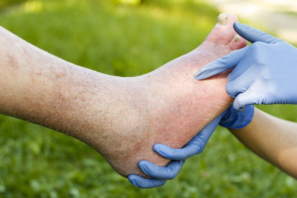 Opracowano zdalnie sterowany bandaż, stosowany w leczeniu ran przewlekłych