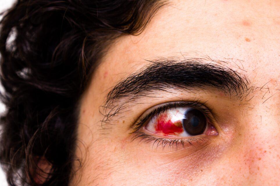 Mechaniczne uszkodzenie oka. Jak zdiagnozować uraz i jakie badania należy przeprowadzić?