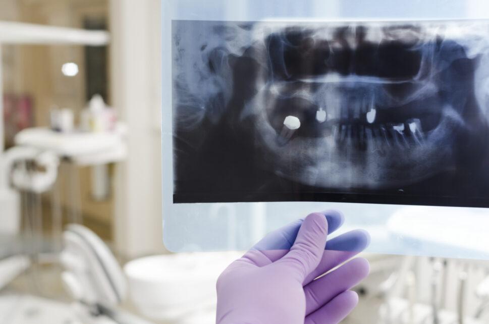 4 cm tłuszczak przedsionka jamy ustnej – case study