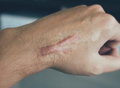 Naukowcy wykazali związek napięcia w skórze z procesem bliznowacenia
