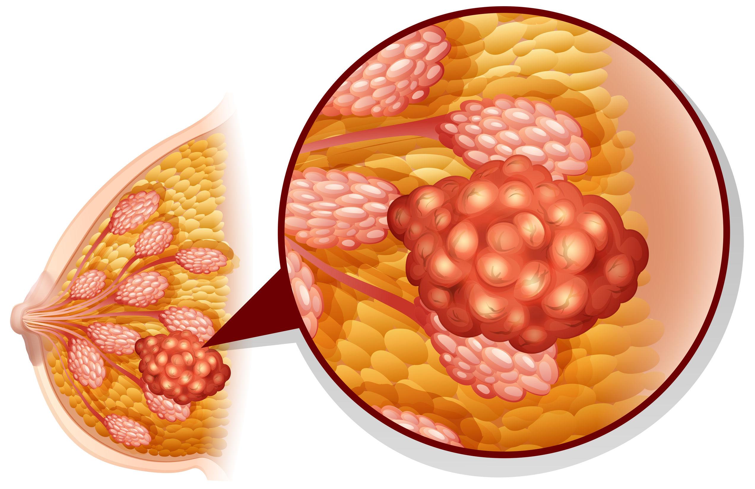 Tumorektomia w leczeniu guzów piersi